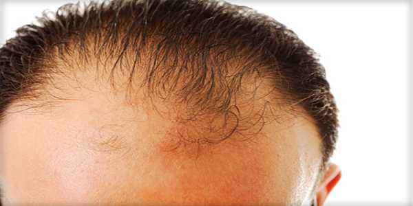 How to Know if You Are Going Bald And Ways to Overcome Baldness