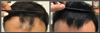 Board Certified Hair Restoration