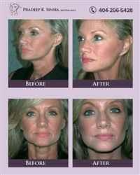 Face & Neck Plastic Surgery