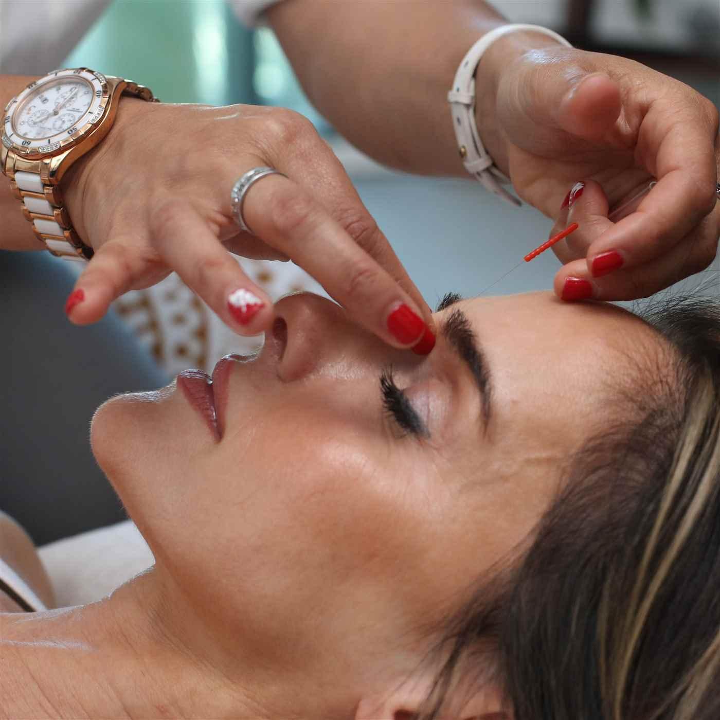 Medical Acne Treatment