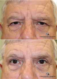 Brow-Lift-Before-After-Combo